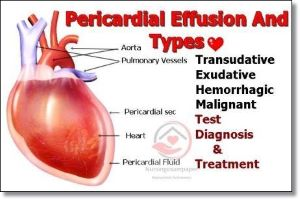 Pericardial Effusion types, clinical manifestations, complication, Diagnosis and treatment.