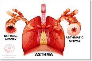 Asthma, types symptoms