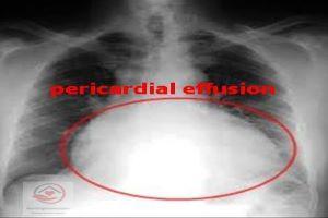 pericardial effusion X ray
