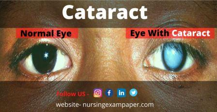 Cataract Type Symptoms Diagnosis and Treatment
