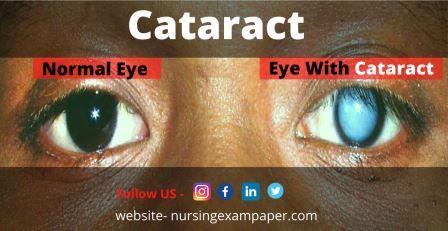 Cataract Type Symptoms Diagnosis and Treatment
